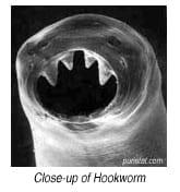 Hookwormcloseup